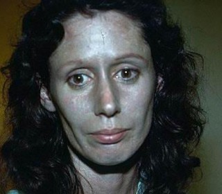 Rosemary Jacobs, 66, suffers from argyria, a skin ...
