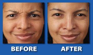 Photo courtesy of Xeomin and MD Dermatology of Maryland