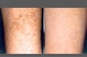 Photo Courtesy of MD Dermatology